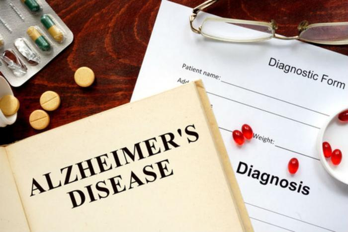 Exercise May Protect Against Alzheimer's