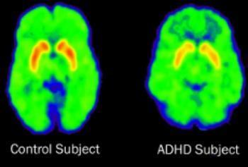 Sunlight And Adhd >> Researchers Suspect Adhd May Be Linked To Lack Of Sunlight