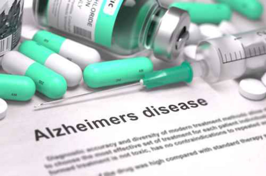 Image result for Alzheimer's Disease Treatment