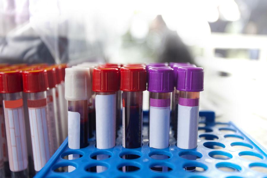 анализы крови на антитела к герпесу