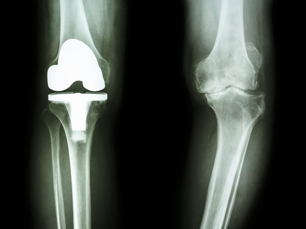 Is Knee Replacement Surgery Worth It