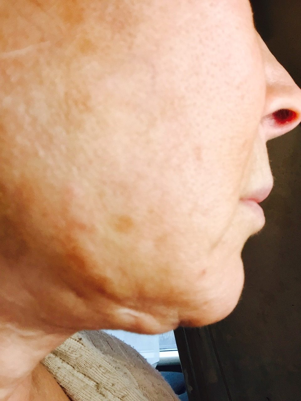 lifestyle lift reviews -- at lifesyle lift, we focus on your face, eyes and neck area now you can wake up every day looking years younger call 888-80.