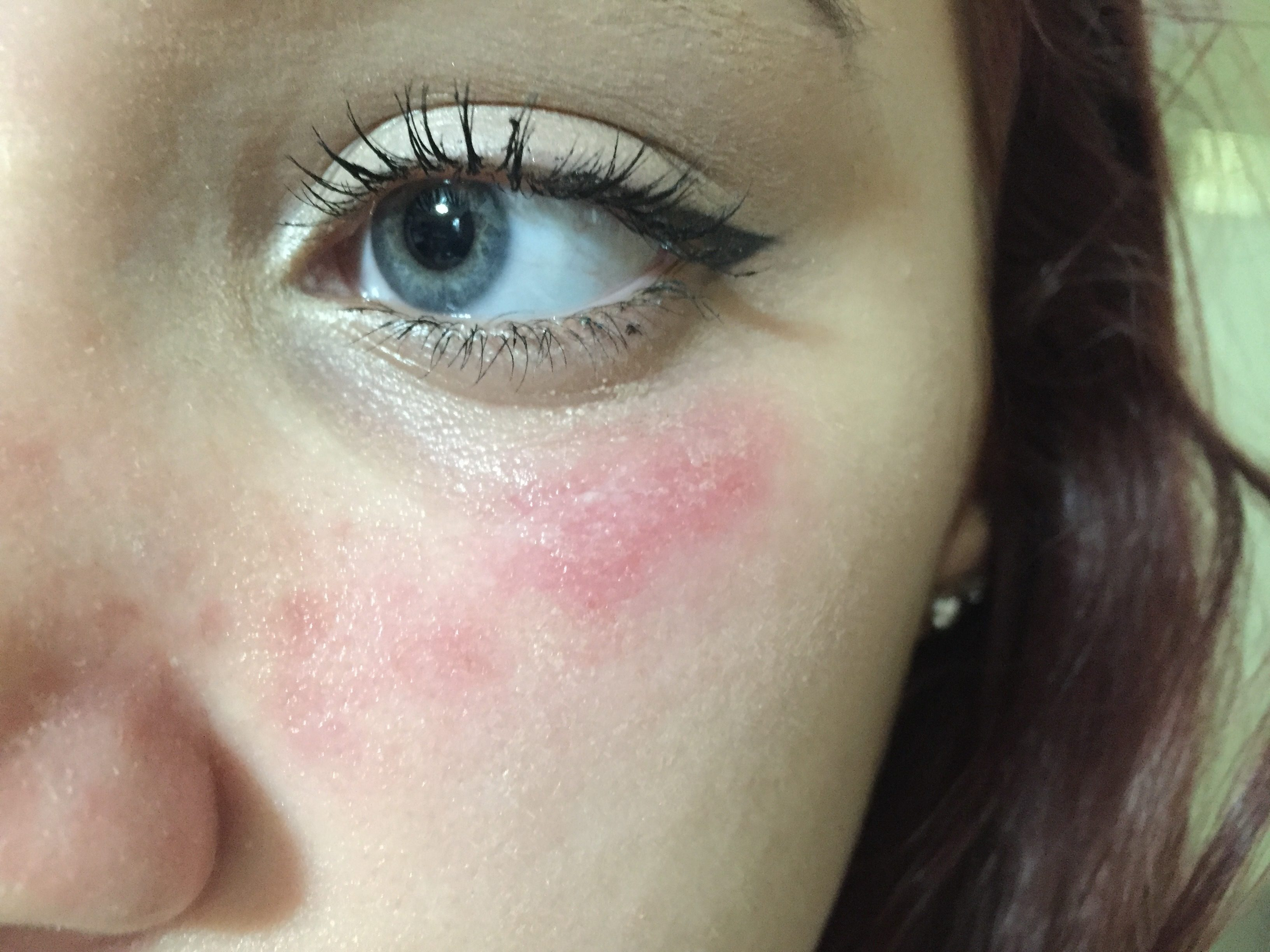Ingredients in mascara that cause allergies