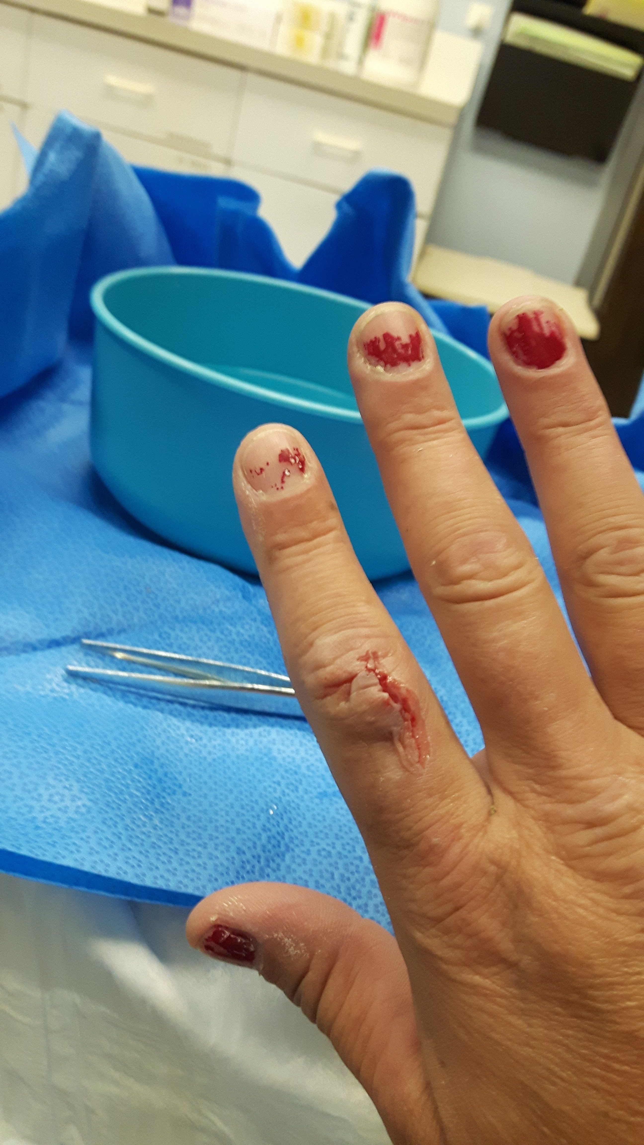 top 1 034 complaints and reviews about mcdonalds i got a cut on the top of my index finger that required 4 stitches and severed nerves from a sundae cup i was offered 100 and food coupons